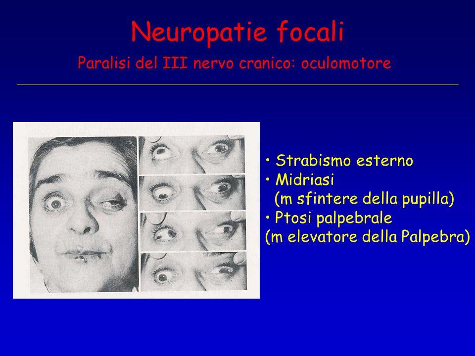 Neuropatie focali Paralisi del III nervo cranico: oculomotore
