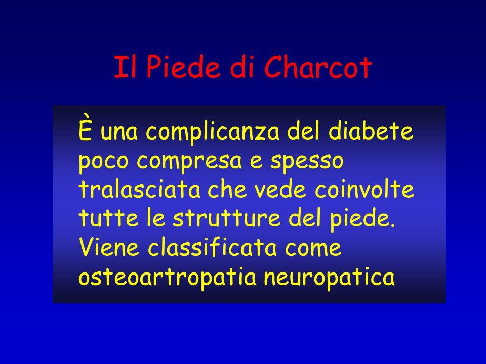 Il Piede di Charcot