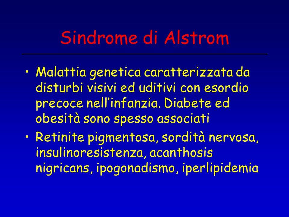 Sindrome di Alstrom
