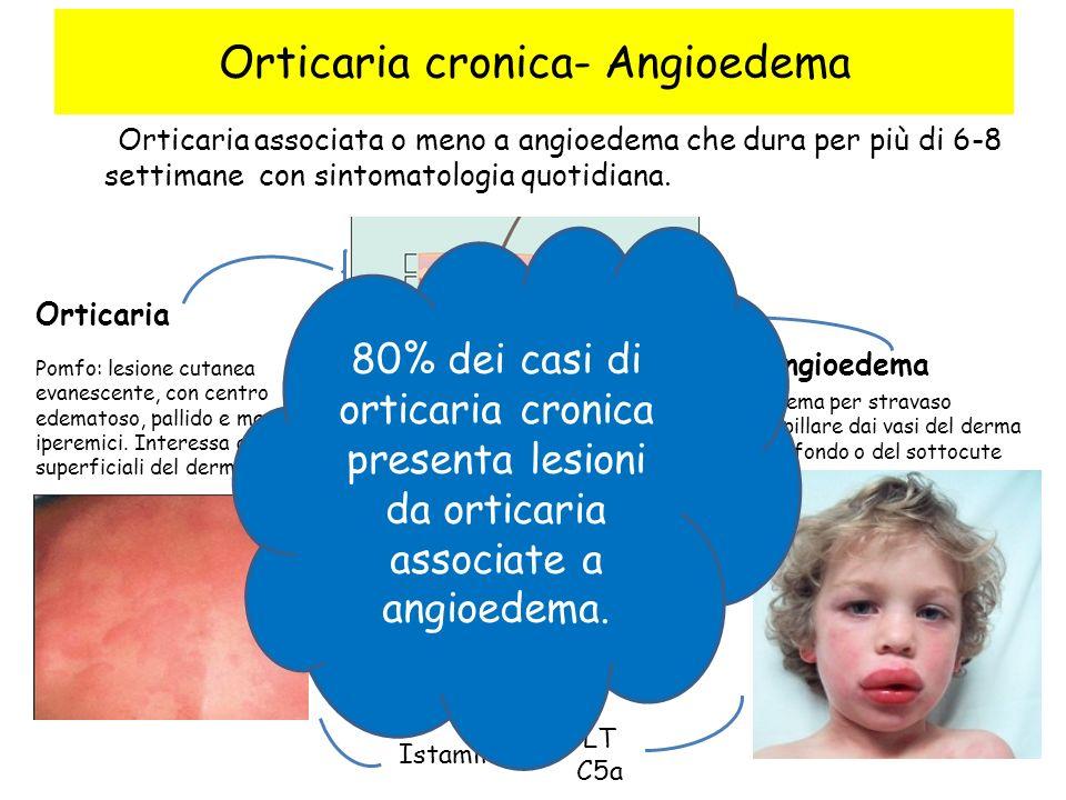 Orticaria cronica- Angioedema