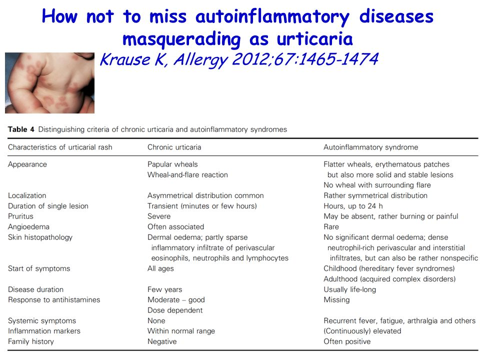 How not to miss autoinflammatory diseases masquerading as urticaria