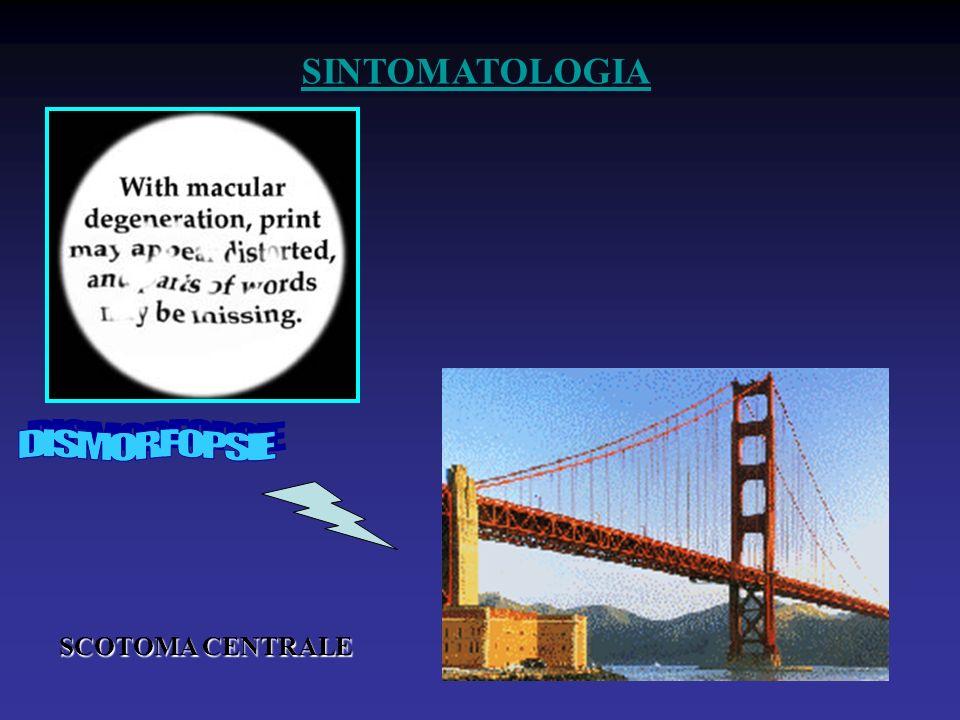SINTOMATOLOGIA DISMORFOPSIE SCOTOMA CENTRALE