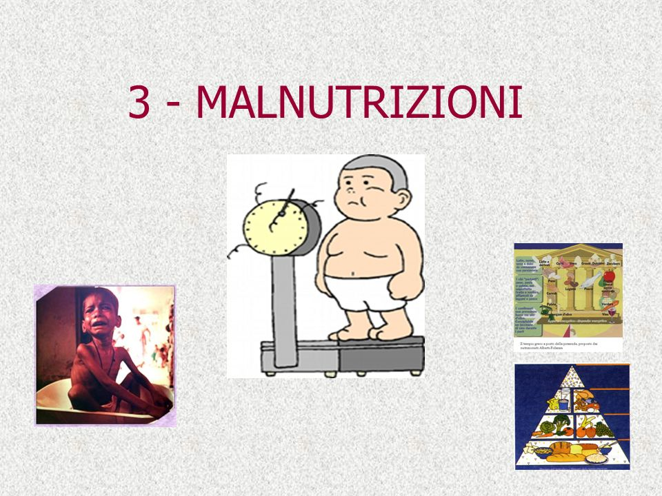 3 - MALNUTRIZIONI