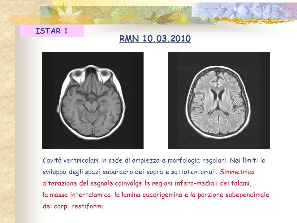 ISTAR 1 RMN 10.03.2010. Cavità ventricolari in sede di ampiezza e morfologia regolari. Nei limiti lo.