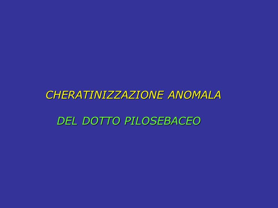 CHERATINIZZAZIONE ANOMALA