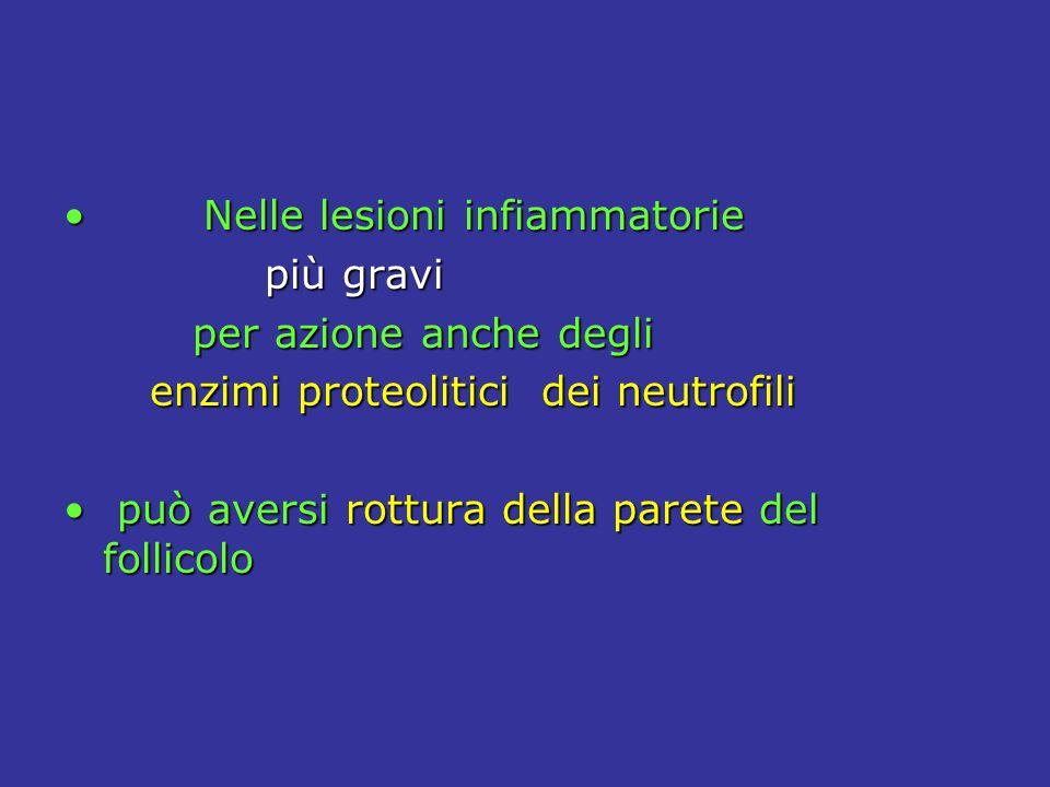 Nelle lesioni infiammatorie