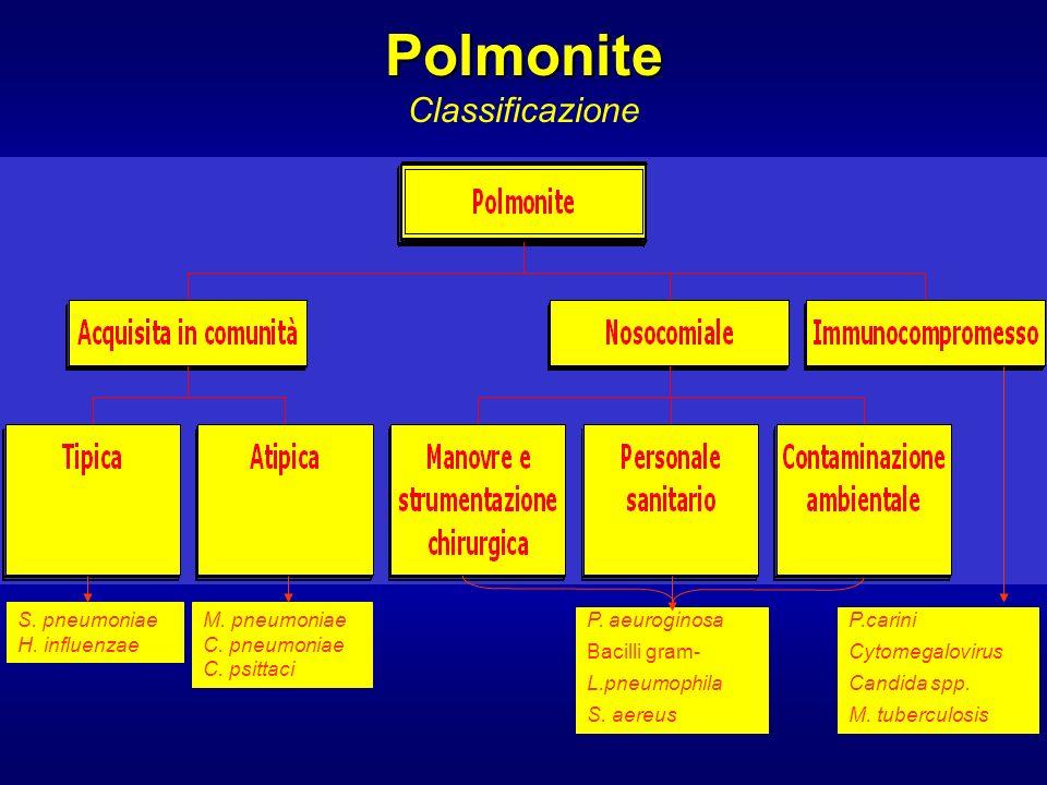 Polmonite Classificazione