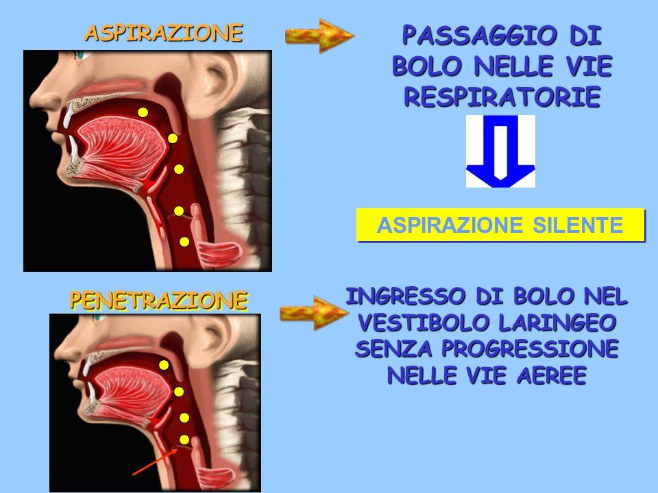 PASSAGGIO DI BOLO NELLE VIE RESPIRATORIE