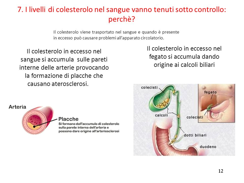 7. I livelli di colesterolo nel sangue vanno tenuti sotto controllo: perchè