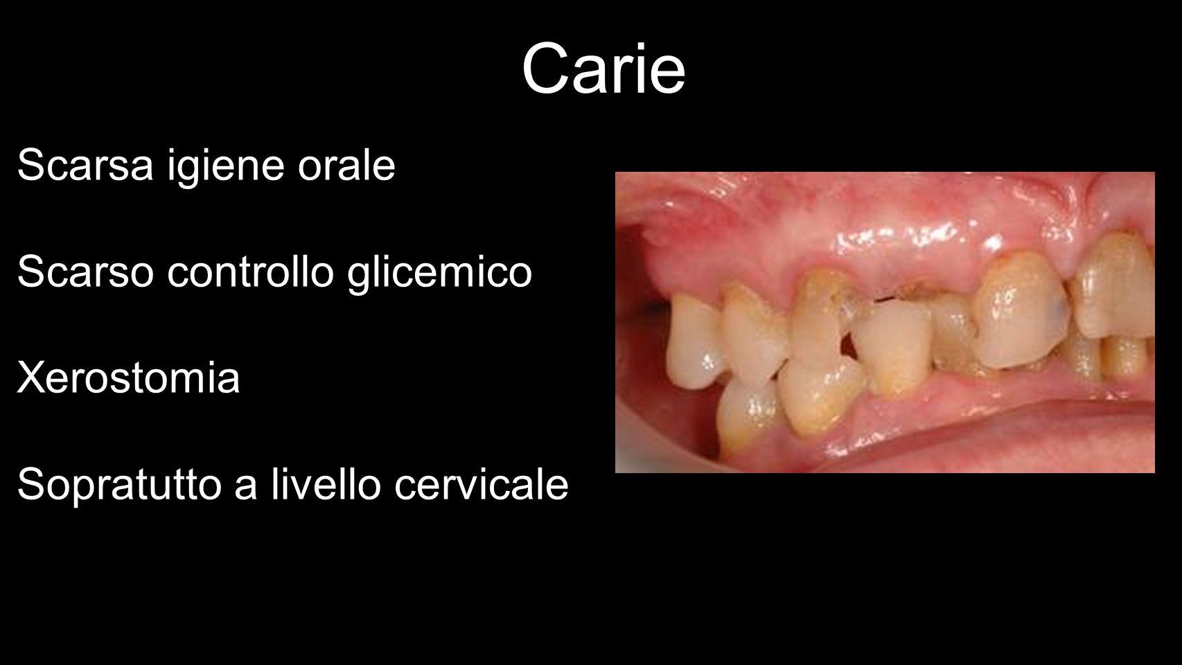 Carie Scarsa igiene orale Scarso controllo glicemico Xerostomia
