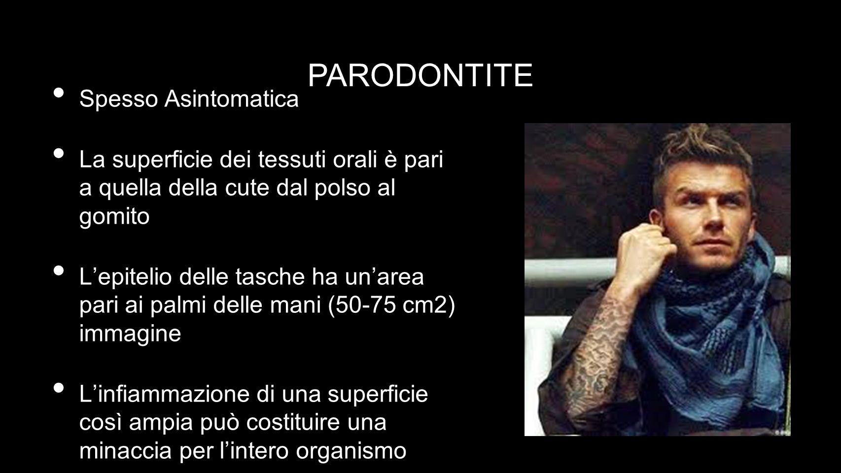 PARODONTITE Spesso Asintomatica
