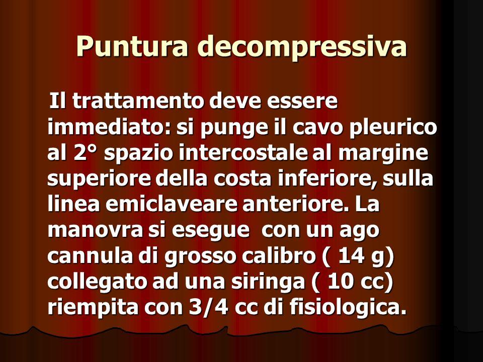 Puntura decompressiva