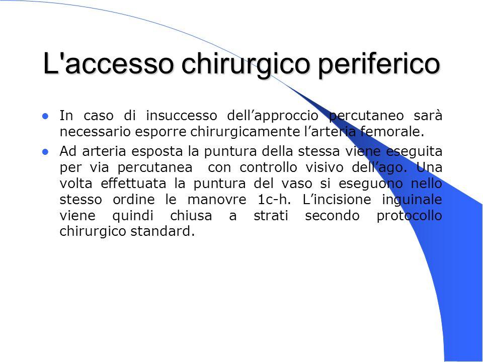 L accesso chirurgico periferico