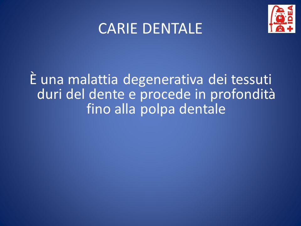 CARIE DENTALE È una malattia degenerativa dei tessuti duri del dente e procede in profondità fino alla polpa dentale.
