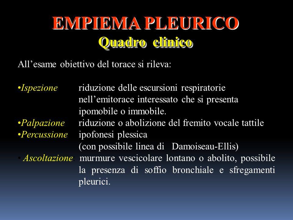 EMPIEMA PLEURICO Quadro clinico