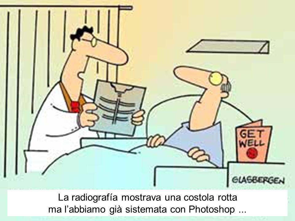 La radiografía mostrava una costola rotta