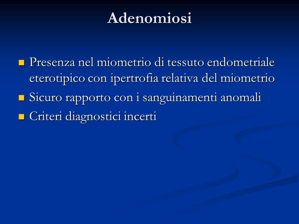 Adenomiosi Presenza nel miometrio di tessuto endometriale eterotipico con ipertrofia relativa del miometrio.