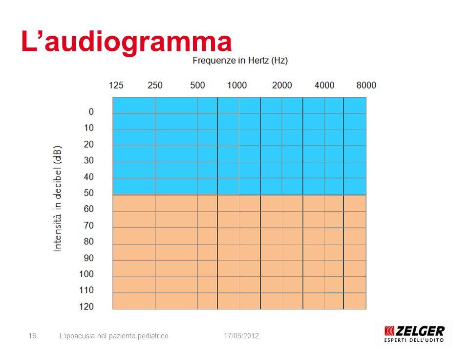 L'audiogramma L ipoacusia nel paziente pediatrico 17/05/2012