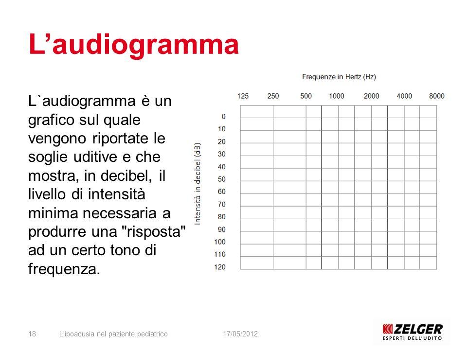 L'audiogramma