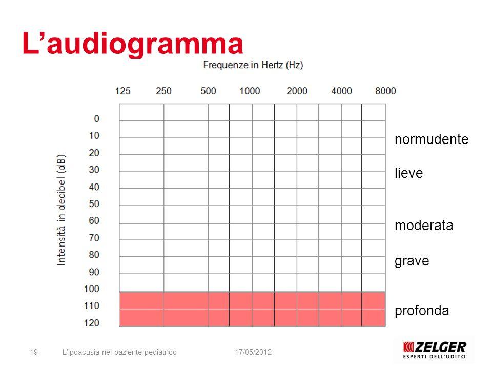 L'audiogramma normudente lieve moderata grave profonda