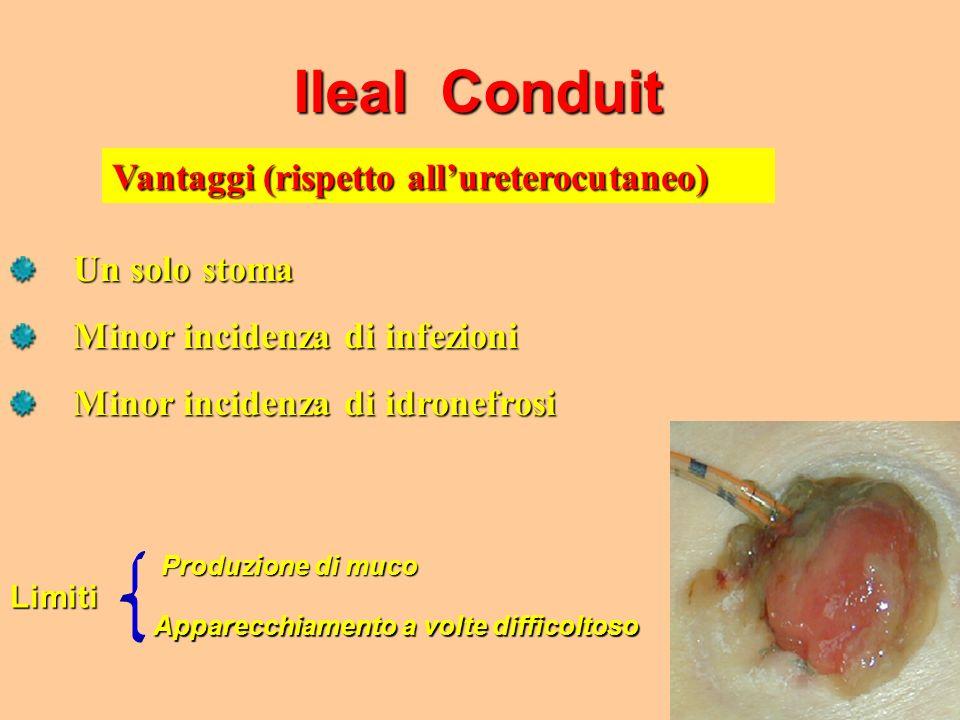 Ileal Conduit Vantaggi (rispetto all'ureterocutaneo) Un solo stoma