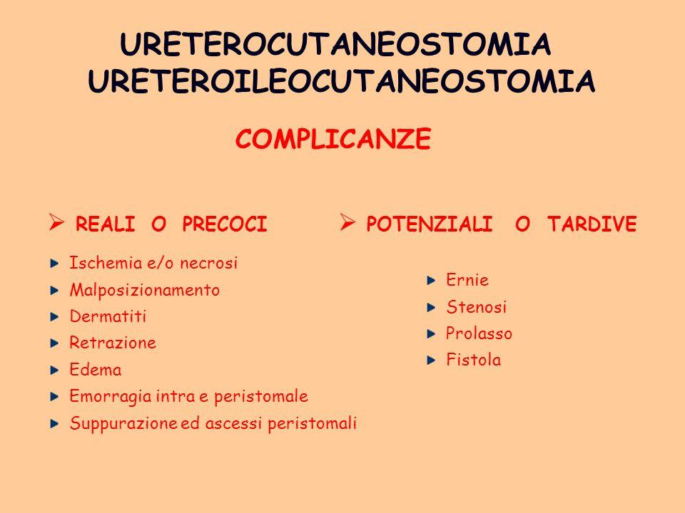 URETEROCUTANEOSTOMIA URETEROILEOCUTANEOSTOMIA