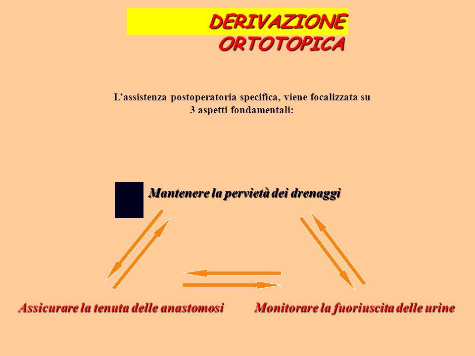 DERIVAZIONE ORTOTOPICA