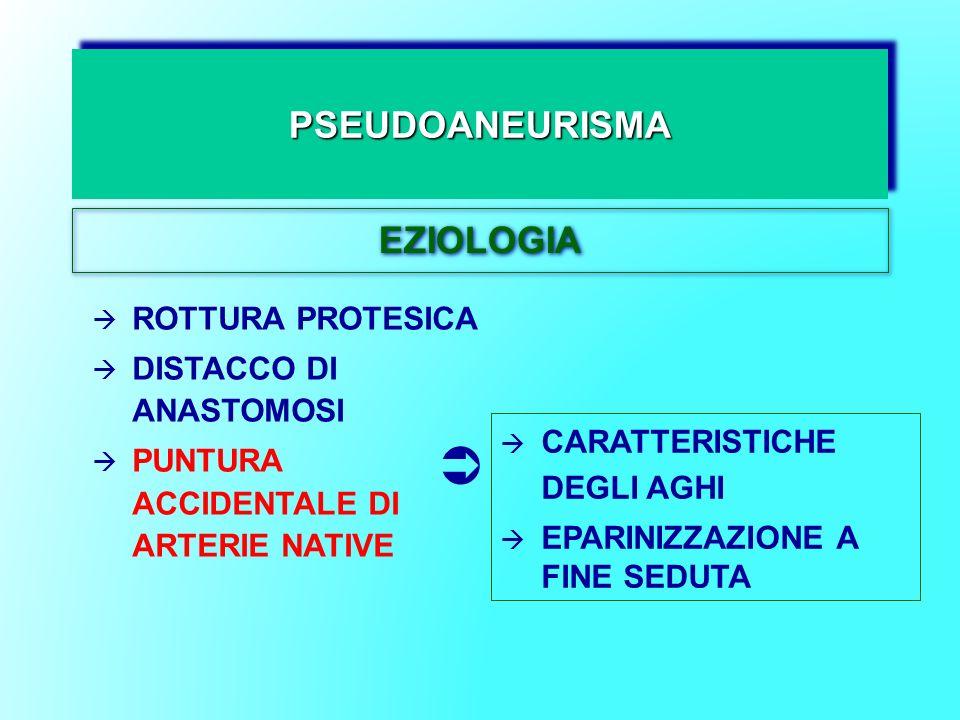  PSEUDOANEURISMA EZIOLOGIA ROTTURA PROTESICA DISTACCO DI ANASTOMOSI