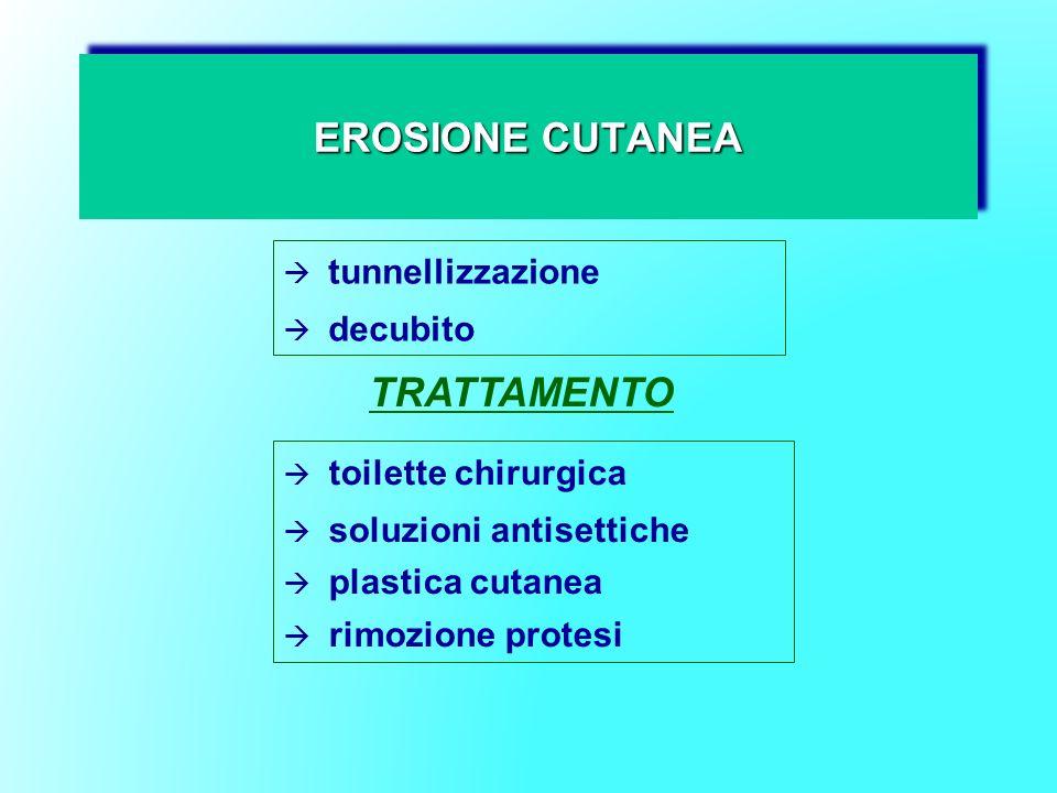 EROSIONE CUTANEA TRATTAMENTO tunnellizzazione decubito