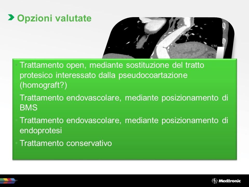 Opzioni valutate Trattamento open, mediante sostituzione del tratto protesico interessato dalla pseudocoartazione (homograft )