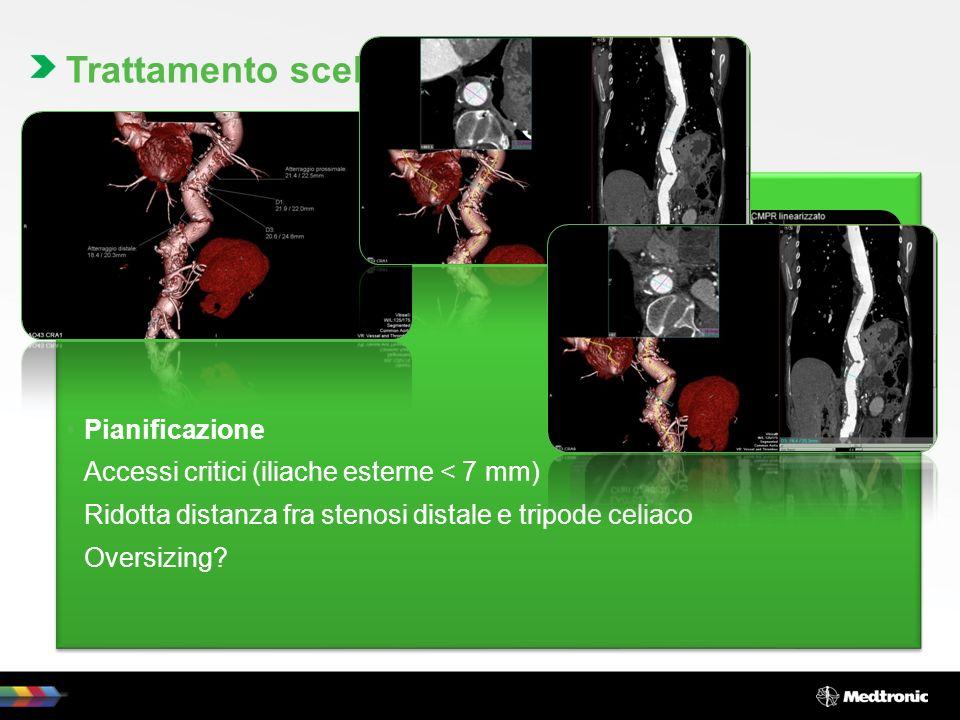 Trattamento scelto Trattamento endovascolare, mediante posizionamento di endoprotesi. Pianificazione.