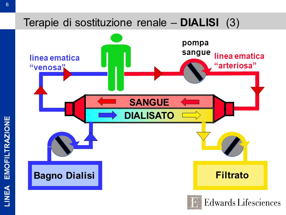 Terapie di sostituzione renale – DIALISI (3)