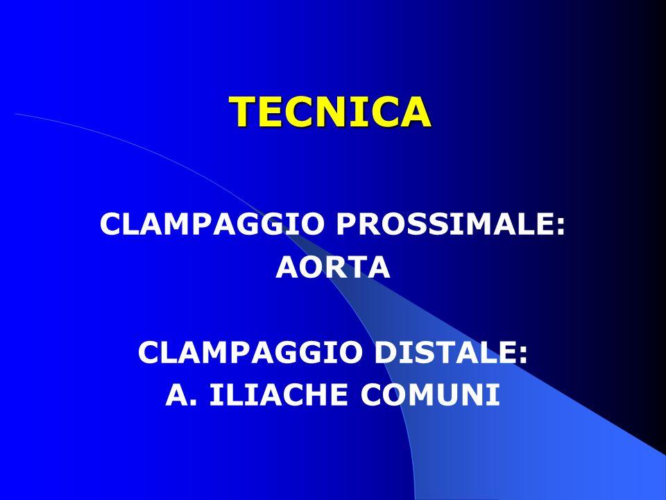 CLAMPAGGIO PROSSIMALE: AORTA CLAMPAGGIO DISTALE: A. ILIACHE COMUNI