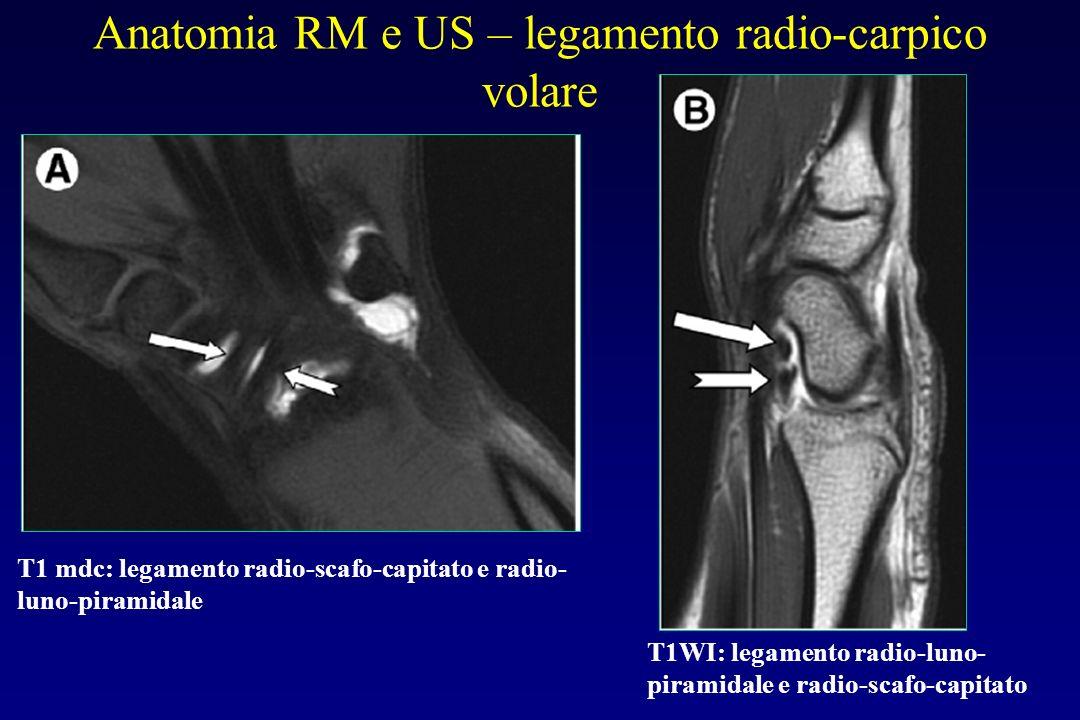 Anatomia RM e US – legamento radio-carpico volare