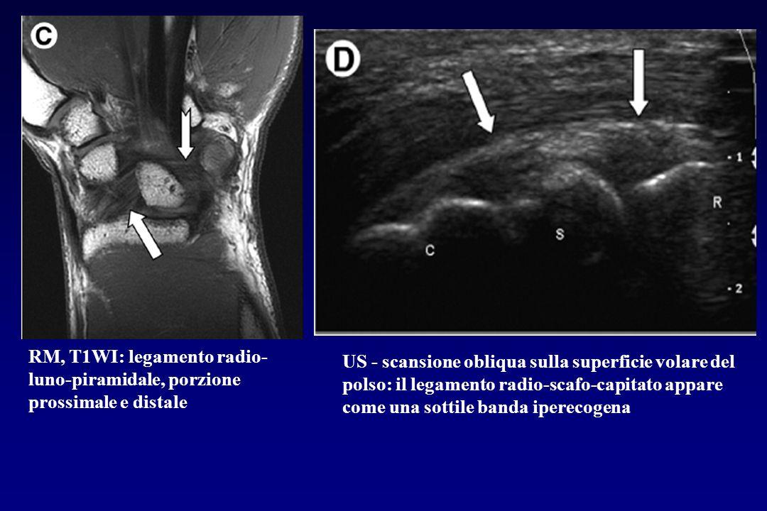 RM, T1WI: legamento radio-luno-piramidale, porzione prossimale e distale