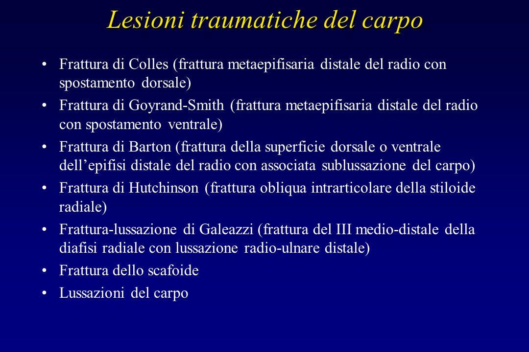 Lesioni traumatiche del carpo