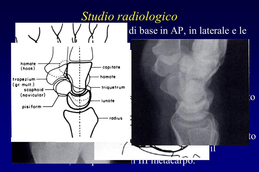 Studio radiologico Comprende le proiezioni di base in AP, in laterale e le oblique.