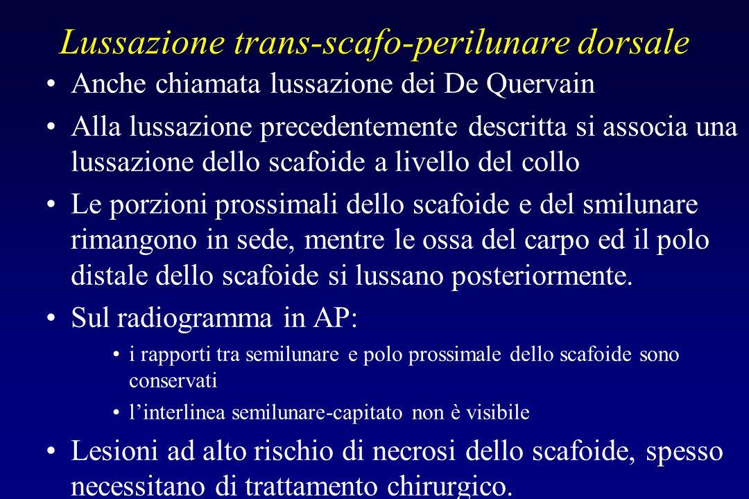 Lussazione trans-scafo-perilunare dorsale