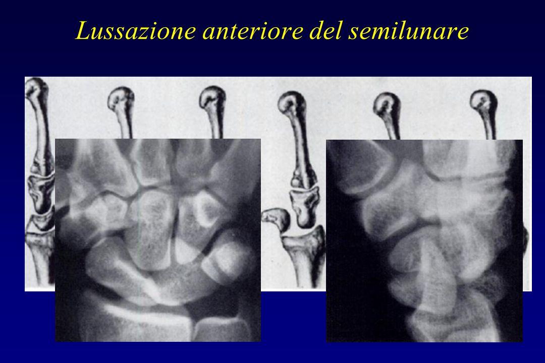 Lussazione anteriore del semilunare