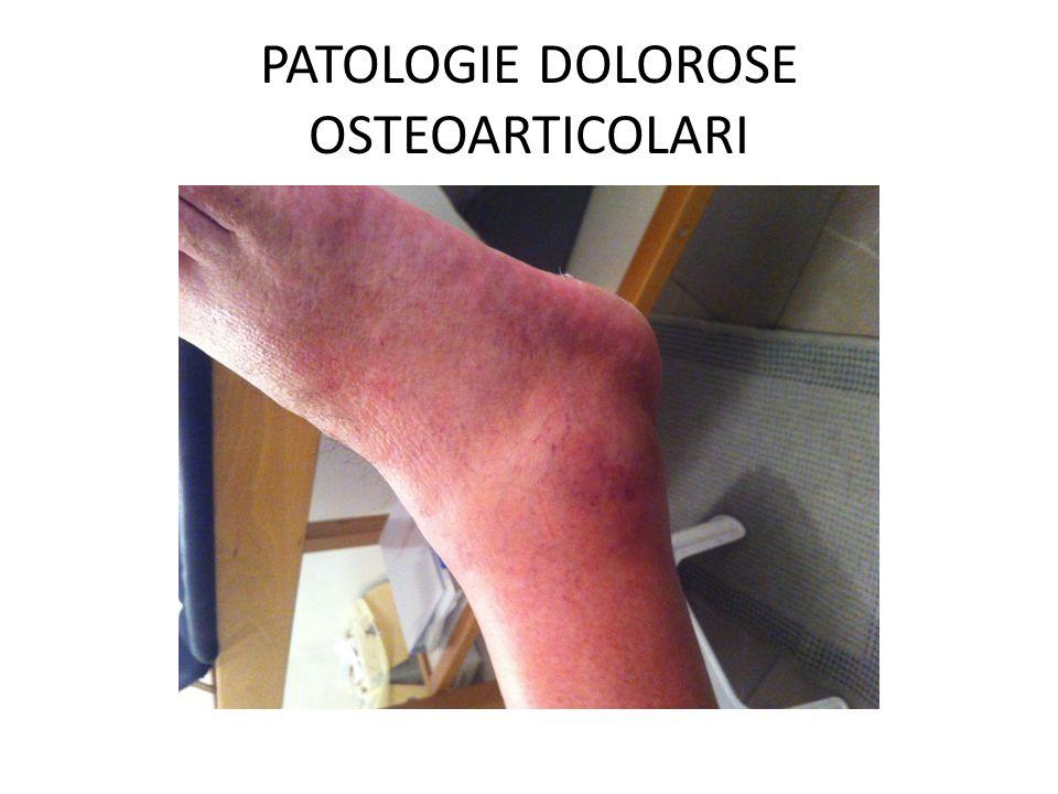 PATOLOGIE DOLOROSE OSTEOARTICOLARI