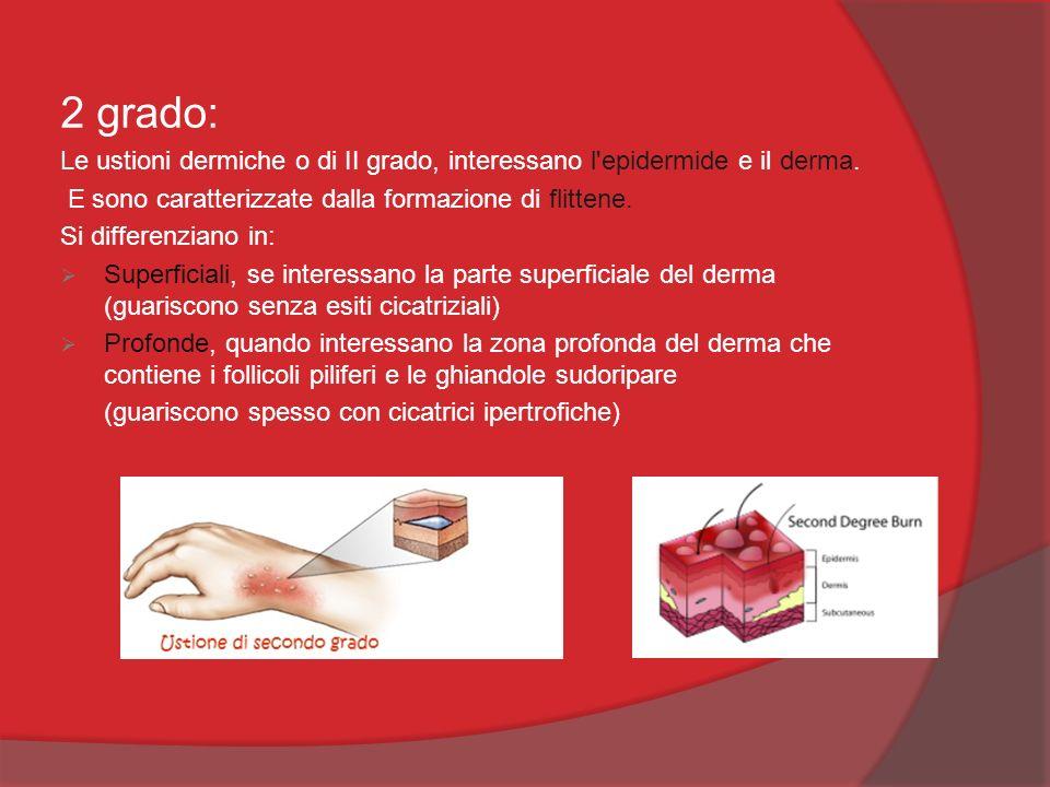 2 grado: Le ustioni dermiche o di II grado, interessano l epidermide e il derma. E sono caratterizzate dalla formazione di flittene.