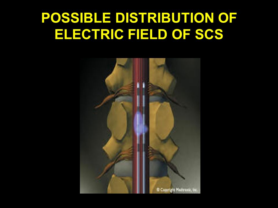 POSSIBLE DISTRIBUTION OF ELECTRIC FIELD OF SCS