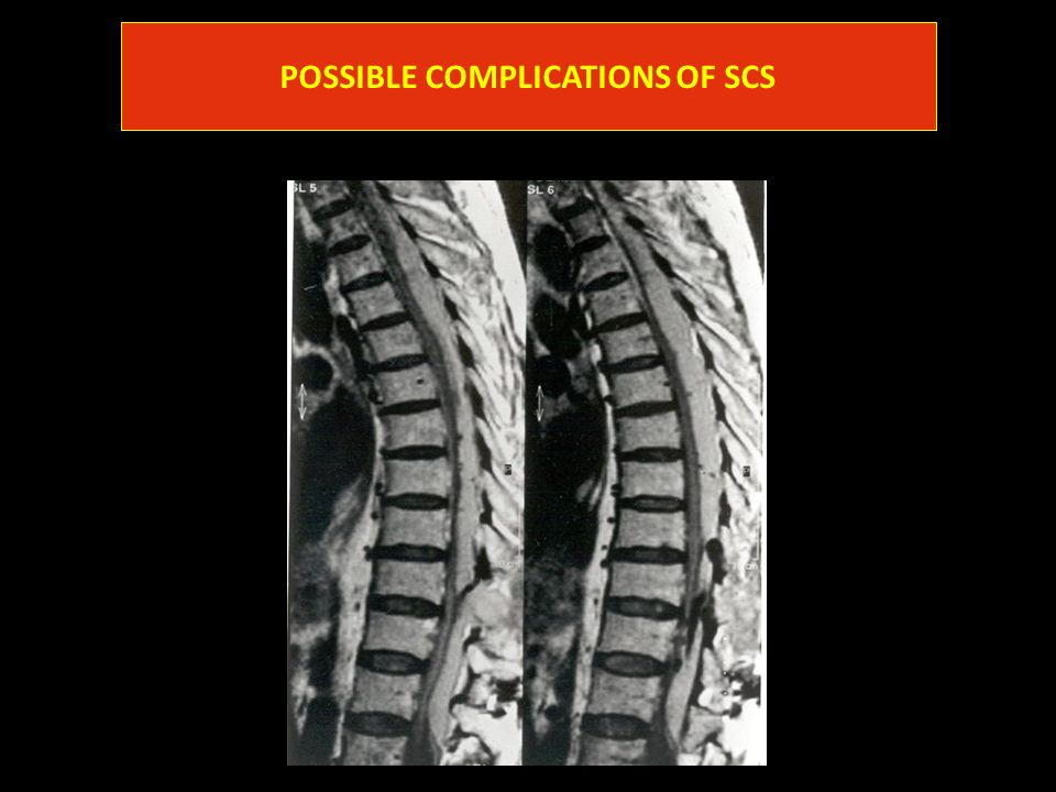POSSIBLE COMPLICATIONS OF SCS
