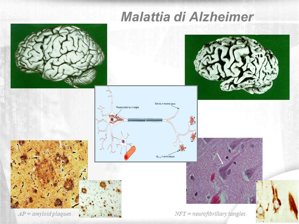 Malattia di Alzheimer AD AP NFT AP = amyloid plaques