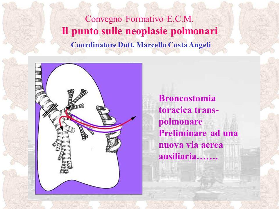 Broncostomia toracica trans-polmonare
