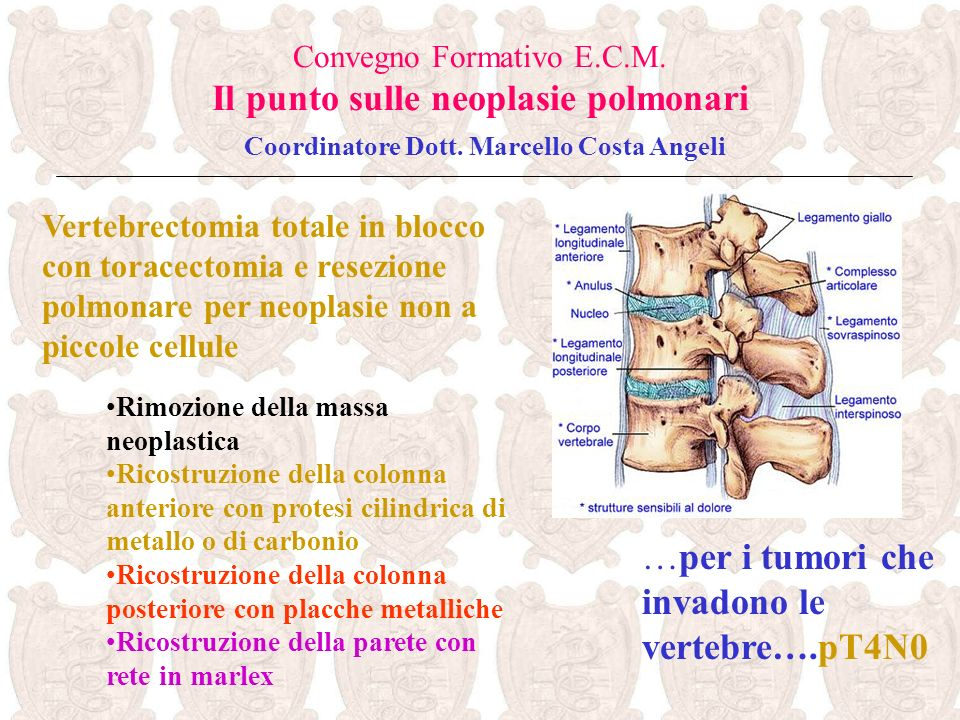 …per i tumori che invadono le vertebre….pT4N0
