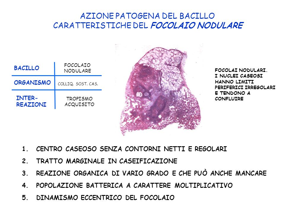 AZIONE PATOGENA DEL BACILLO CARATTERISTICHE DEL FOCOLAIO NODULARE