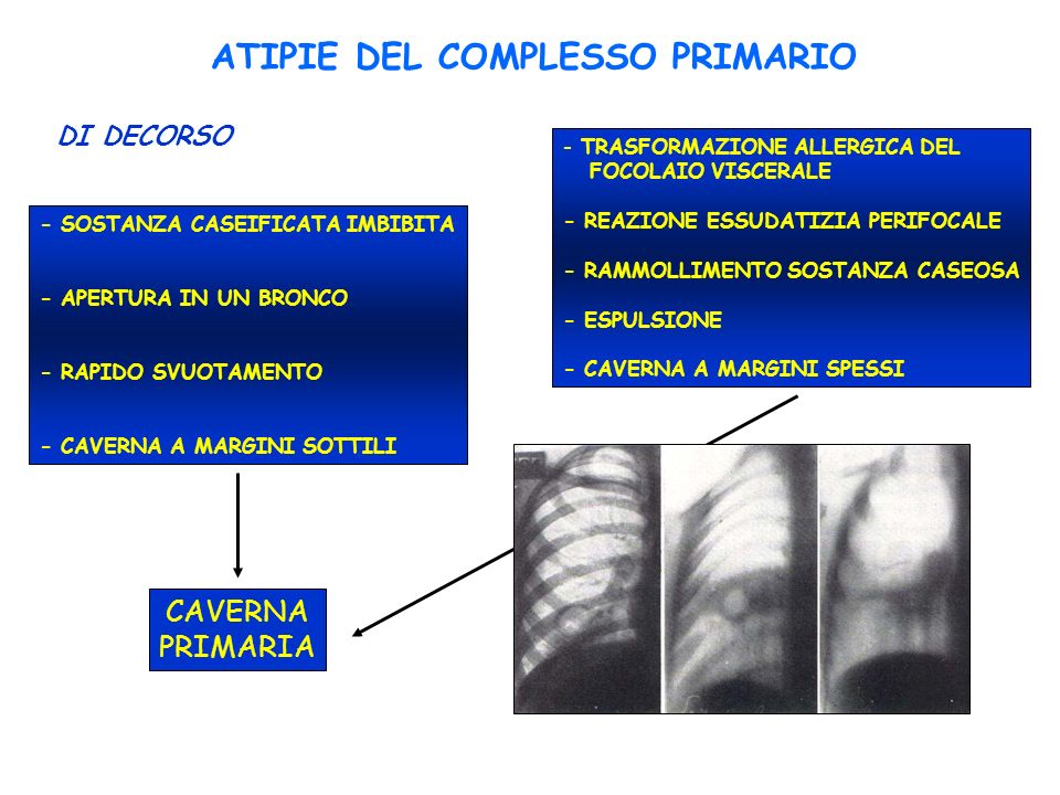 ATIPIE DEL COMPLESSO PRIMARIO