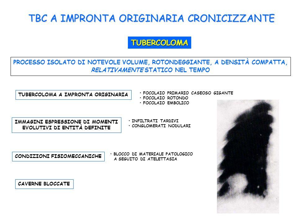 TBC A IMPRONTA ORIGINARIA CRONICIZZANTE