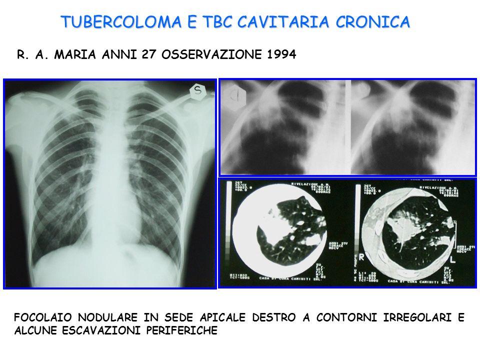 TUBERCOLOMA E TBC CAVITARIA CRONICA